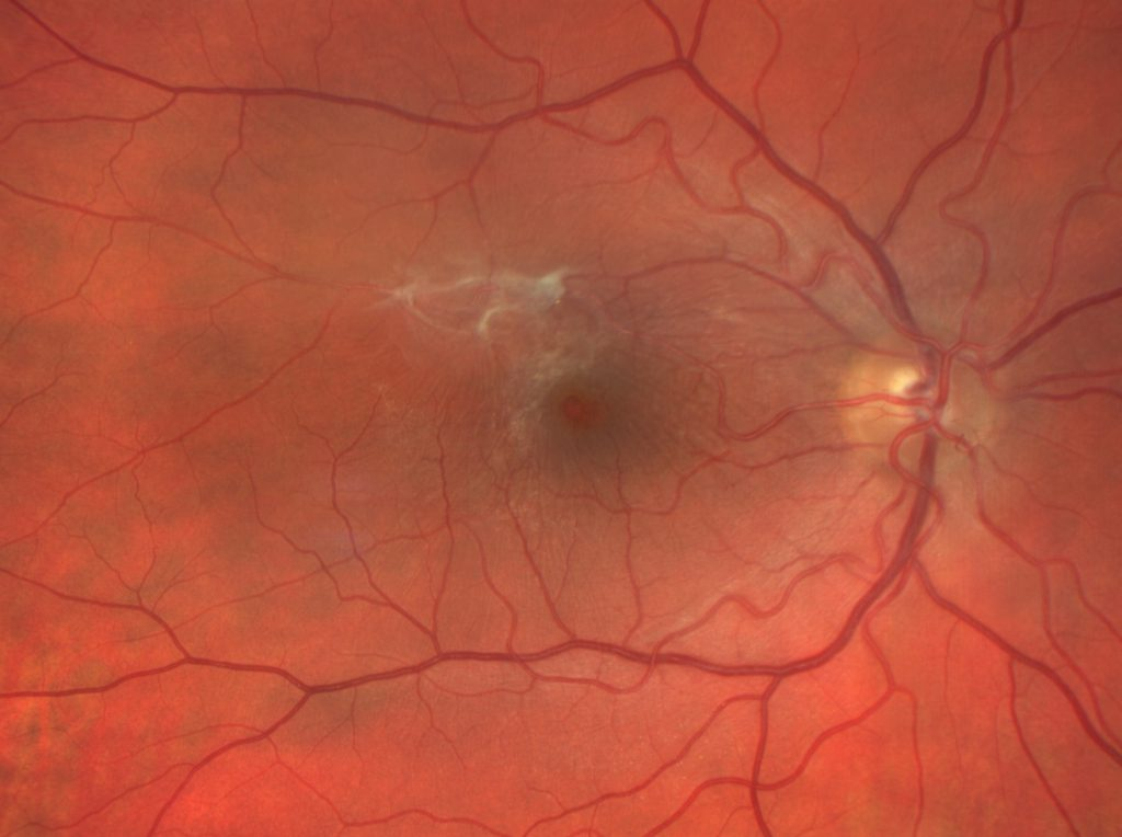 Fine, white fibrous scar tissues at the macular in a condition called epiretinal membrane