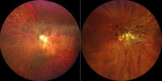 Scarred, stretched tissues of the retina can occur when you are short-sighted or myopic