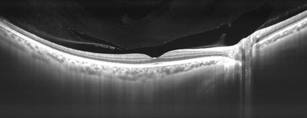 A black and white or grey-scale optical coherence tomography (OCT) scan showing deep tissues of the eye and different layers of the retina