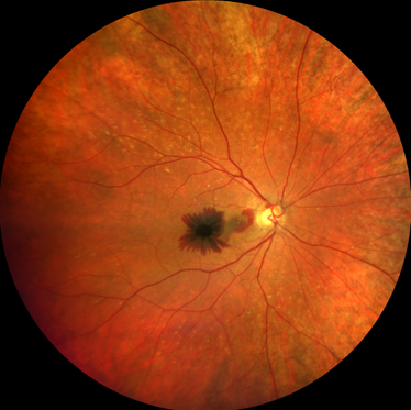 Bleeding at the macula can occur from the new blood vessel growth in macular degeneration