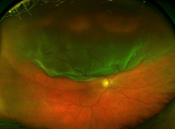 Retina detaches from the underlying tissues, in a similar way as wallpaper coming off a wall