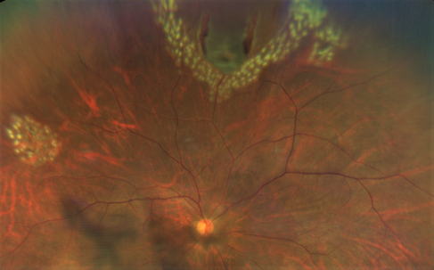 A tear or a break in the retina can be seen at the top, with laser being applied to seal off the area