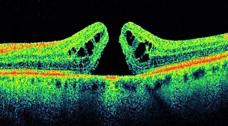 The black gap in the colour-coded layers of the retina in an optical coherence tomography scan is the macular hole