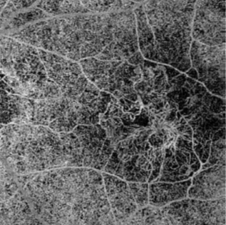 A black and white or grey-scale optical coherence tomography angiography (OCTA) scan showing convoluted new blood vessels from macular degeneration