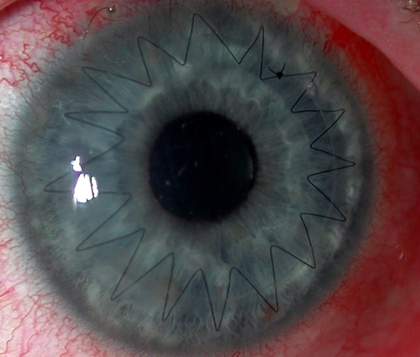 Eye with stitches and a donor cornea tissue in a corneal transplant