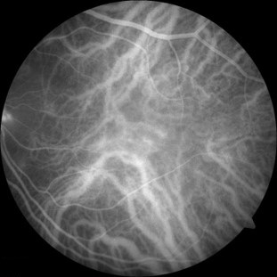 A black and white image taken by a photographic test called indocyanine green angiography. Blood vessels in the deeper layers of the eye appear white in the photo.