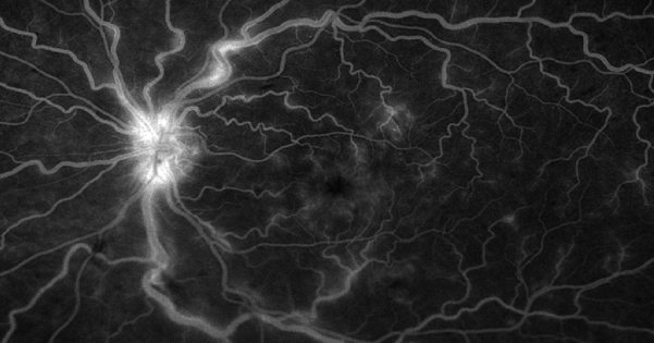 Bleeding and swelling of the retina in retinal vein occlusion