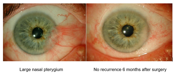 Large reddish flesh growing on the white part of the eye in pterygium.