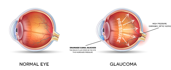 Normal eye versus a glaucoma eye. Eyes with glaucoma have compromised or blocked drainage channels, resulting in a pressure build-up of fluid