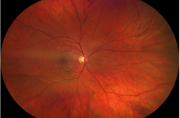A photographic test of the eye showing the optic nerve, retina and blood vessels of the eye